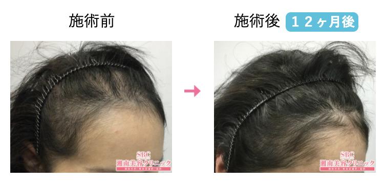 びまん性脱毛症の治療前と治療後の比較画像