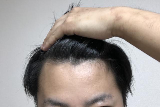 薄毛の男性の画像