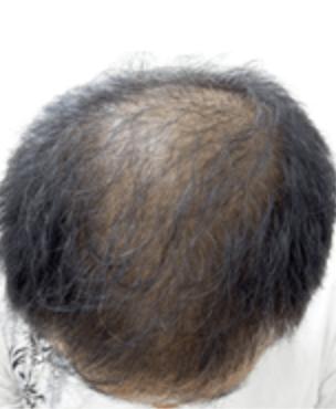 茶色い頭皮の画像