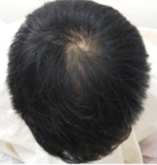肌色の頭皮の画像
