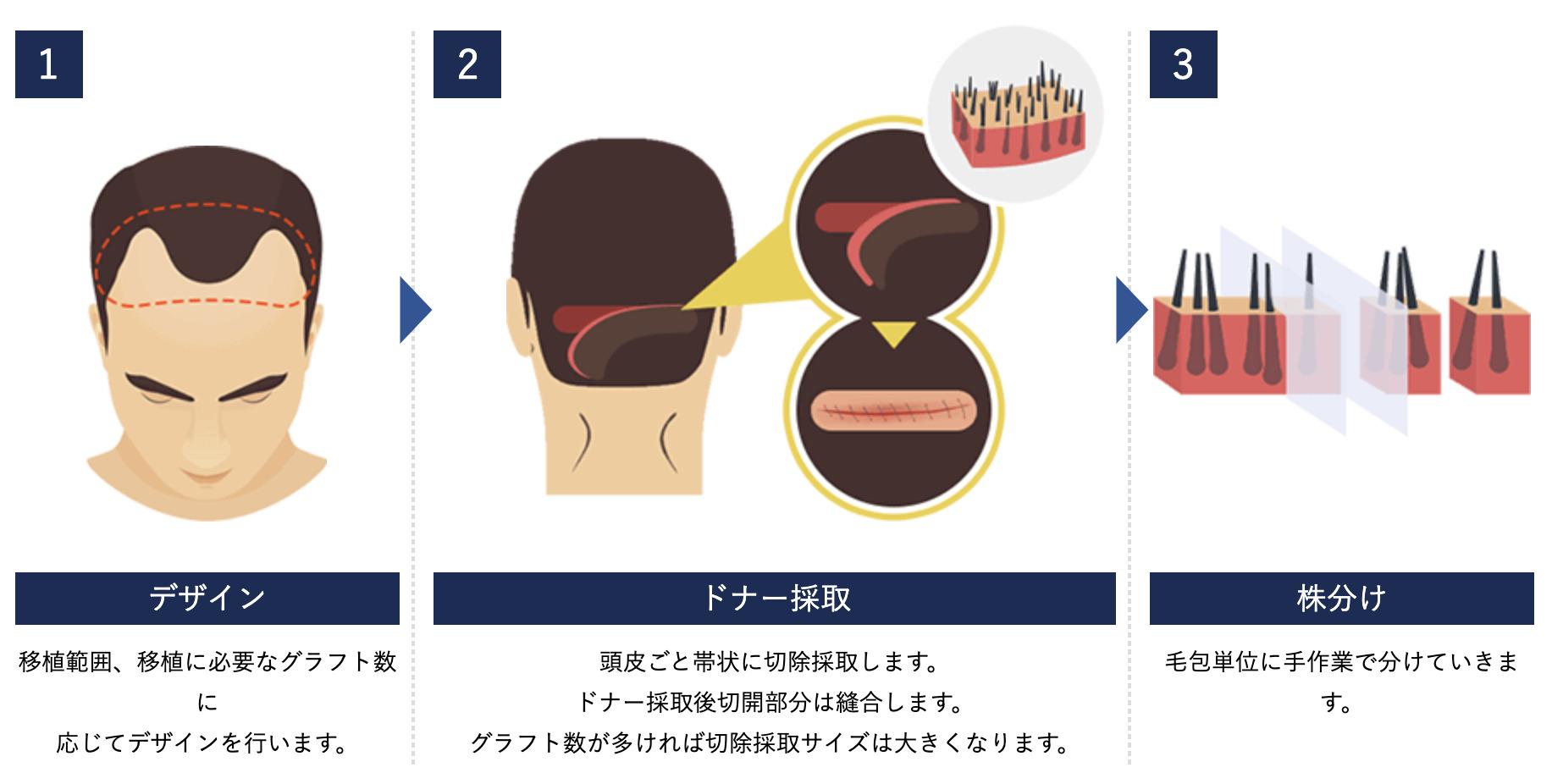 FUT法のイメージ