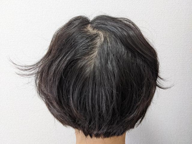 FAGAの女性の頭皮画像