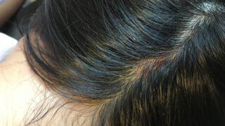 頭皮トラブルの画像